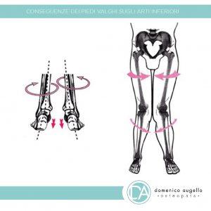 piede-piatto-risolvere-con-l-osteopatia